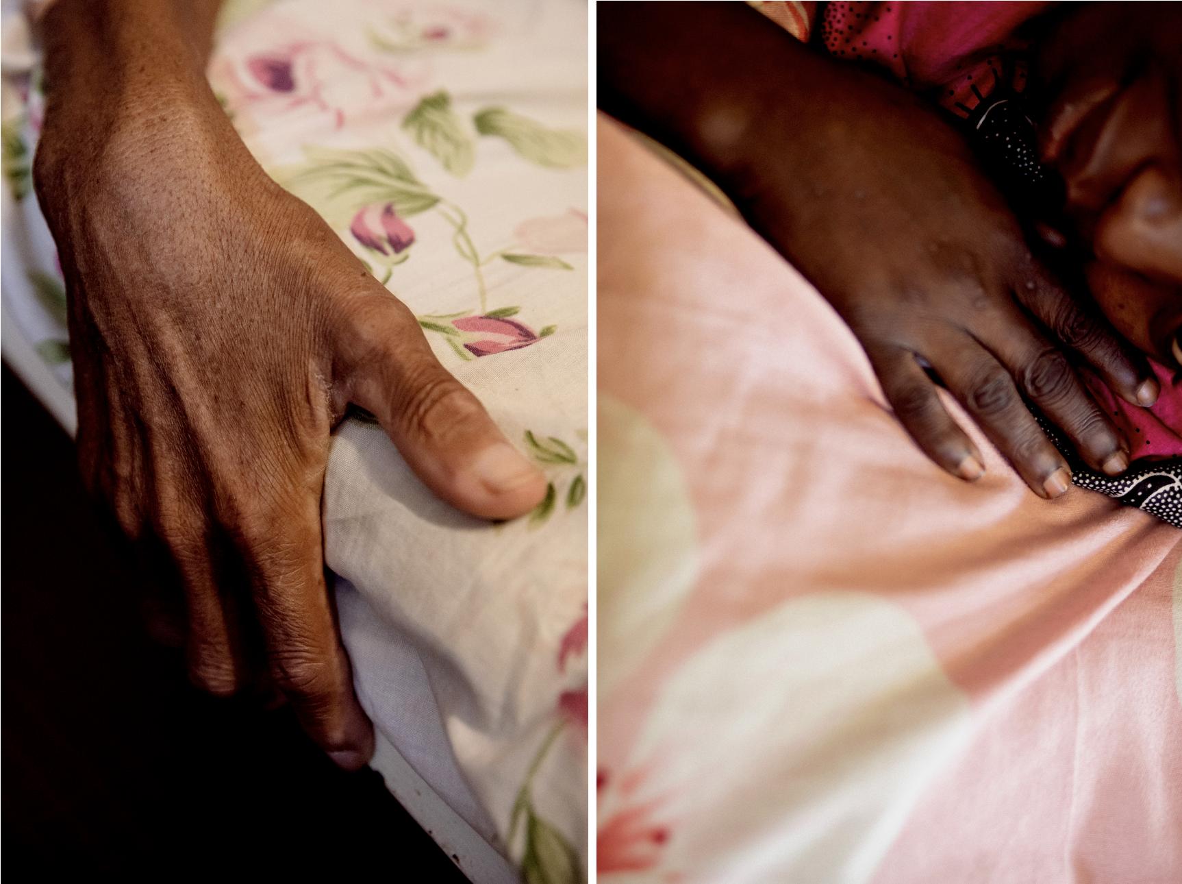 Mains de patients pris en charge à l'hôpital communautaire de Bangui, novembre 2020. Crédit : Adrienne Surprenant/Collectif Item